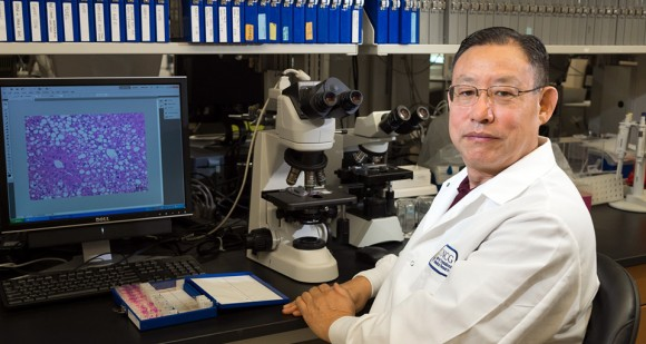 CTBR co-director Dr. Zhanxiang Zhou heads up a research team investigating alcohol-induced fatty liver disease, which can lead to hepatitis, cirrhosis, and liver failure.